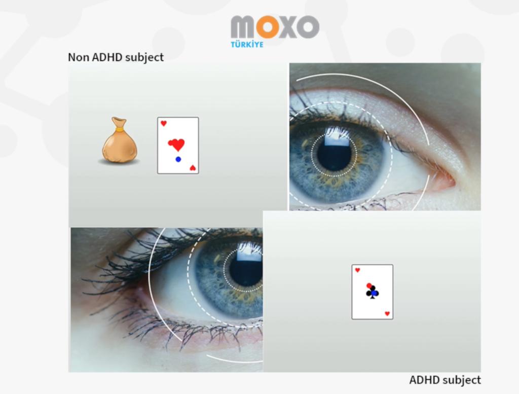 Gelecekte Moxo Testi